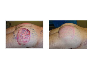 Ultimate Buttock Makeover intraop left side view