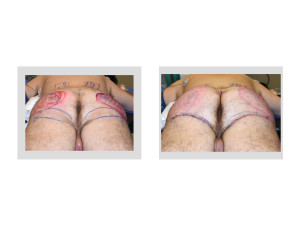Ultimate Buttock Makeover intraop result back view Dr Barry Eppley Indianapolis