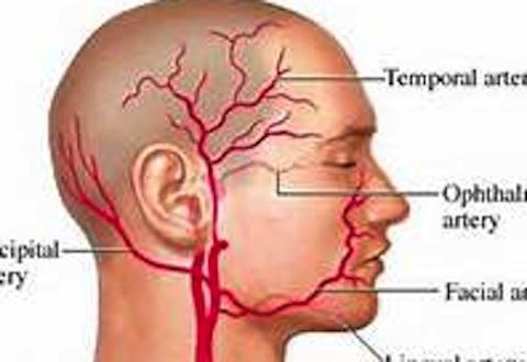 Blog Archivesingle Point Temporal Artery Ligation