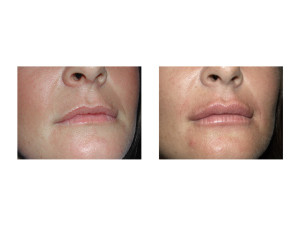 Buccal Fat Lip Injections result Dr Barry Eppley Indianapolis