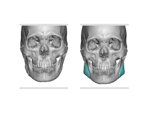 Custom Jaw Angle Implants for Jaw Angle Restoration front view Dr Barry Eppley Indianapolis