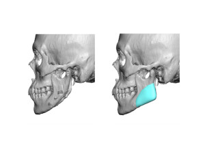 Custom Jaw Angle Implants for Jaw Angle Restoration left side Dr Barry Eppley Indianapolis