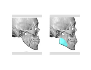 Custom Jaw Angle Implants for Jaw Angle Restoration right side Dr Barry Eppley Indianapolis