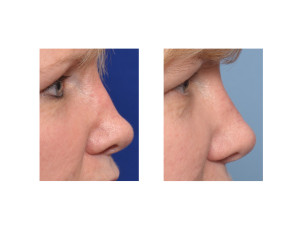 Diced Rib Graft Rhinoplasty result side view Dr Barry Eppley Indianapolis