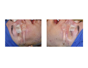 Extended Cheek Zygomatic Arch Implants intraop placement Dr Barry Eppley Indianapolis