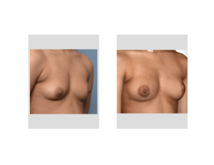 Fat INjection Breast Augmentationk result oblique view Dr Barry Eppley Indianapolis