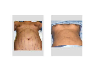 Fat Injection Breast Augmentation Indianapolis Plastic Surgeon Dr Barry Eppley