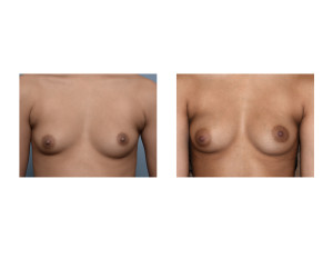 Fat Injection Breast Augmentation result front view Dr Barry Eppley Indianapolis