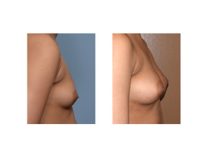 Fat Injection Breast Augmentation result side view Dr Barry Eppley Indianapolis