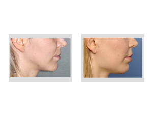 Female Jaw Angle Implants result side view Dr Barry Eppley Indianapolis