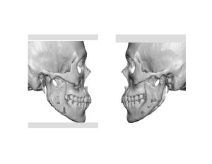 Jaw Angle Reductions with Medpor Impplant Reconstruction Dr Barry Eppley Indiianapolis