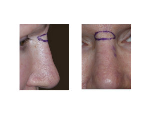 Nasal Lift Excision Pattern Dr Barry Eppley Indianapolis