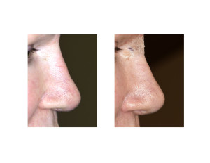 Nasal Lift result Dr Barry Eppley Indianapolis