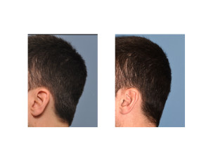 Occipital Skull Reduction result left side view Dr Barry Eppley Indianapolis