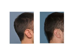 Occipital Skull Reduction result right side view Dr Barry Eppley Indianapolis