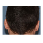 Occipital Skull Reduction scar Dr Barry Eppley Indianapolis