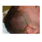 Posterior Temporal Zone of Wide Head Dr Barry Eppley Indianapolis