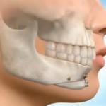 Sliding Genioplasty Indianapolis Dr Eppley