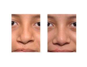 Teenage Cleft Rhinoplasty result front view Dr Barry Eppley Indianapolis