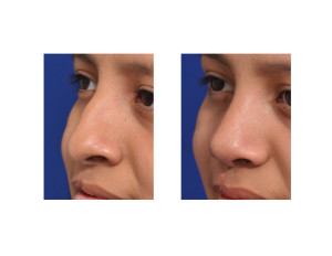 Teenage Cleft Rhinoplasty result left oblique view Dr Barry Eppley Indianapolis