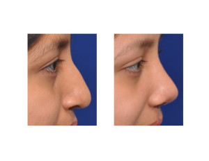 Teenage Cleft Rhinoplasty result side view Dr Barry Eppley Indianapolis