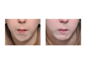 Teenage Jumping Sliding Genioplasty result front view Dr Barry Eppley Indianapolis