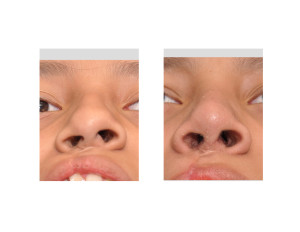 Teenasge Cleft Rhinoplasty result submental view