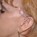 Temporal Cheek Lift Scars Dr. Barry Eppley Indianapolis
