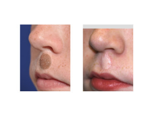 Upper Lip Nevis Excision with Skin Grafting result oblioque view Dr Barry Eppley Indianapolis