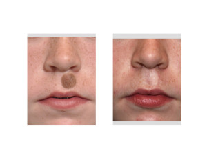 Upper Lip Nevus Excision and Skin Grafting result front view Dr Barry Eppley Indianapolis