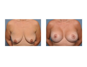 Vertical Breast Lift and Implants result front view Dr Barry Eppley Indianapolis