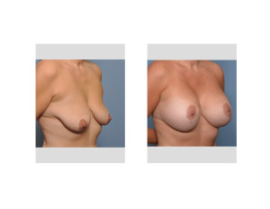Vertical Breast Lift and Implants result oblique view Dr Barry Eppley Indianapolis