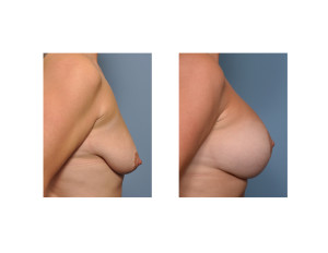 Vertical Breast Lift and Implants result side view Dr Barry Eppley Indianapolis