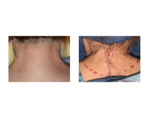 Webbed Neck Surgery before and after during surgery Dr Barry Eppley Indianapolis