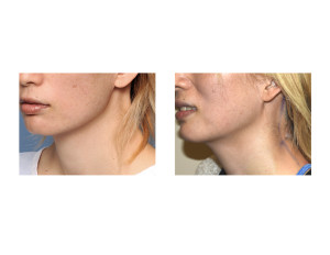 Webbed Neck Surgery left side result Dr Barry Eppley Indianapolis