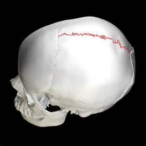 Sagittal suture - Wikipedia