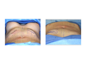 Anterior Rib Removals result intraop from one side Dr Barry Eppley Indianapolis