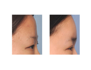Asian Forehead Augmentation result side view Dr Barry Eppley Indianapolis
