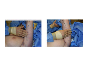 Bingo Arm Liposuction intraop Dr Barry Eppley Indianapolis