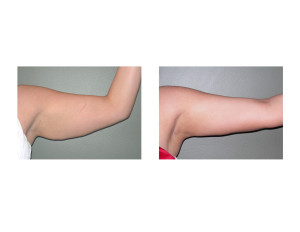 Bingo Arm Liposuction result left arm Dr Barry Eppley Indianapolis