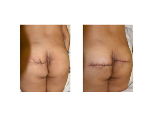 Buttock Reconstruction with Dermal Fat Graft Dr Barry Eppley Indianapolis