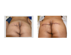 Buttock Reconstruction with Dermal Fat Grafts back view Dr Barry Eppley Indianapolis
