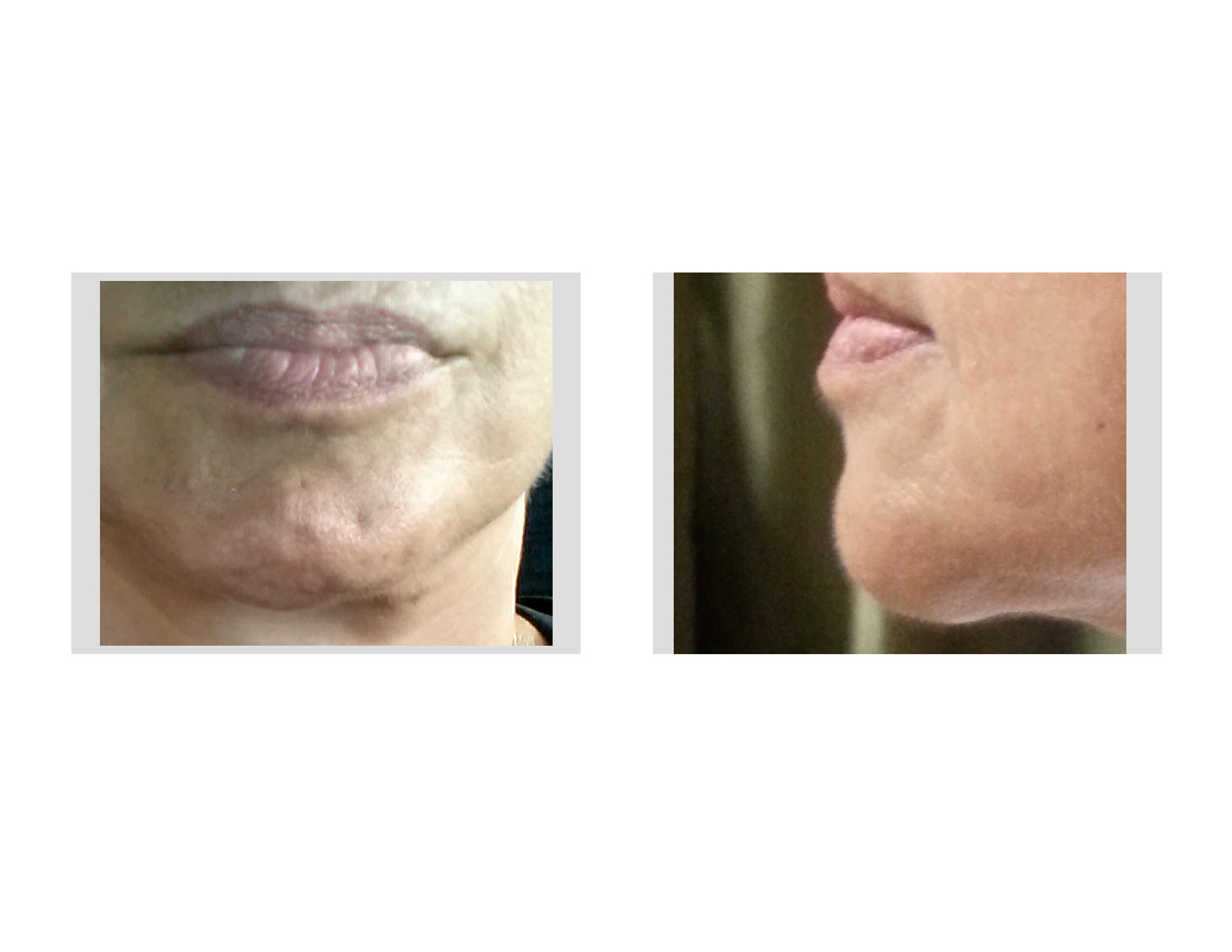 Plastic Surgery Case Study - Female Chin Implant Revision