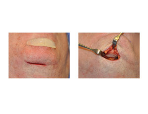 Chin Implant Removal Dr Barry Eppley Indianapolis
