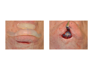 Chin Implant Replacement Dr Barry Eppley Indianapolis