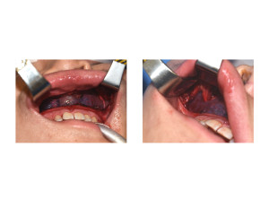 Custom MIdface Implant intraop placement Dr Barry Eppley Indianapolis