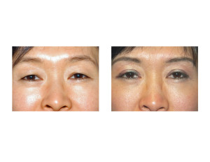 Double Eyelid Surgery Dr Barry Eppley Indianapolis