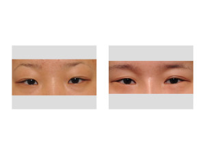 Double Eyelid Surgery and Lower Eyelid Love Band Surgery Dr Barry Eppley Indianapolis