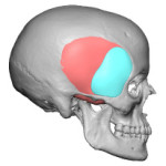 Extended Anterior Temporal Impalnt design side view Dr Barry Eppley Insianapolis