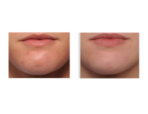 Fat Injections to Chin Dimple result front view Dr Barry Eppley Indianapolis